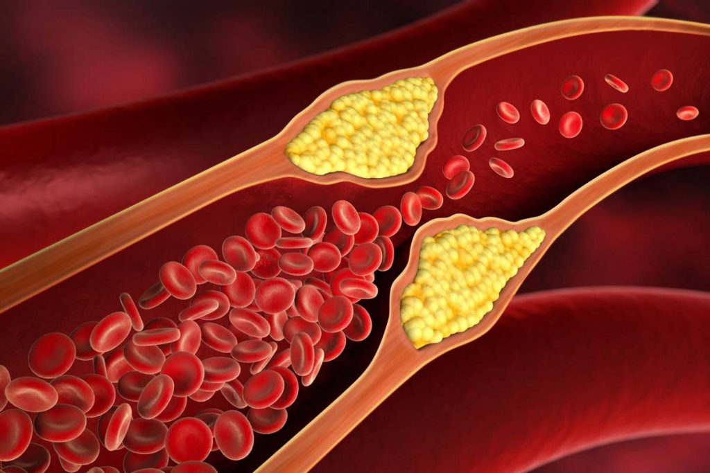 Health Cholesterol minimizes in 4 hours This 1 item,